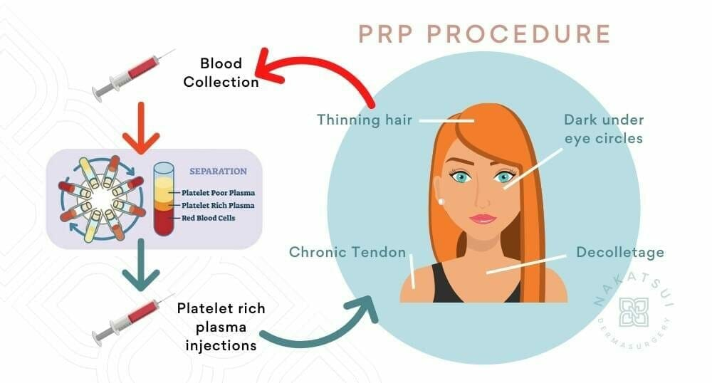 diagram of prp injection therapy edmonton