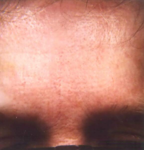 wrinkles after treatment edmonton