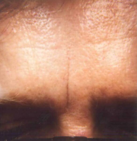 wrinkles before treatment edmonton