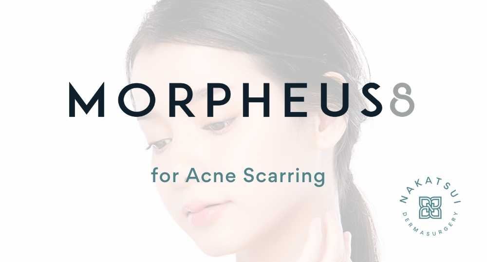 morpheus8 rf microneedling for acne scars edmonton