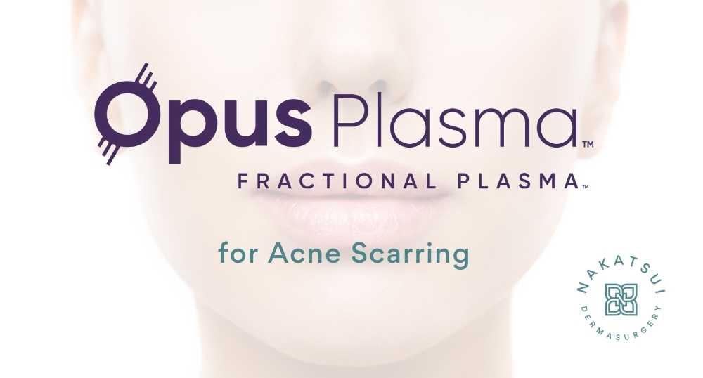 opus plasma resurfacing for acne scars edmonton