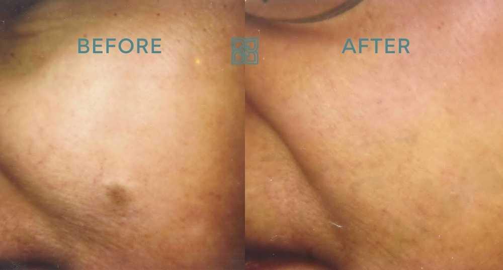 laser mole removal edmonton clinic