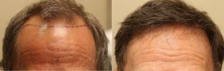 frontal hairline hair restoration