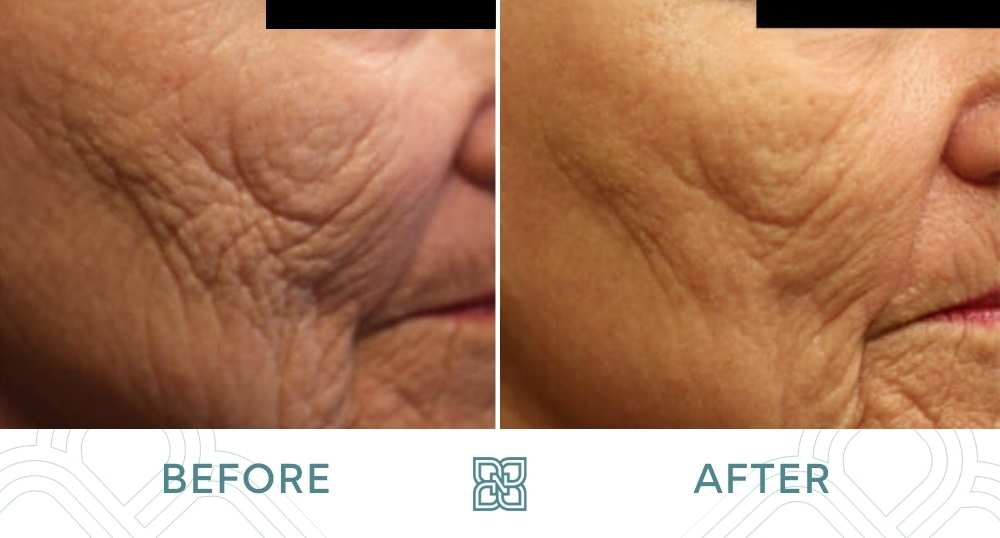 fractional laser resurfacing before and after face