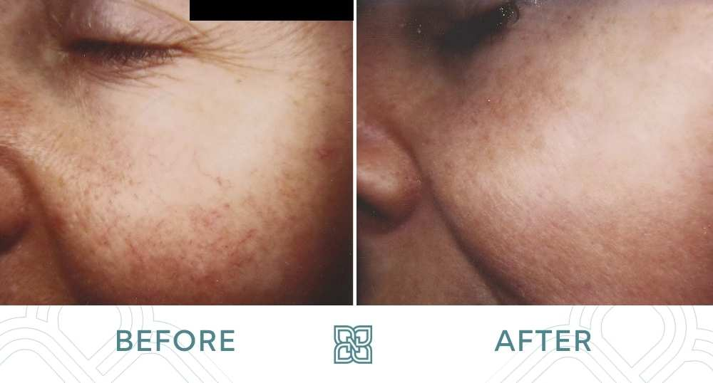 laser vein treatment face before and after