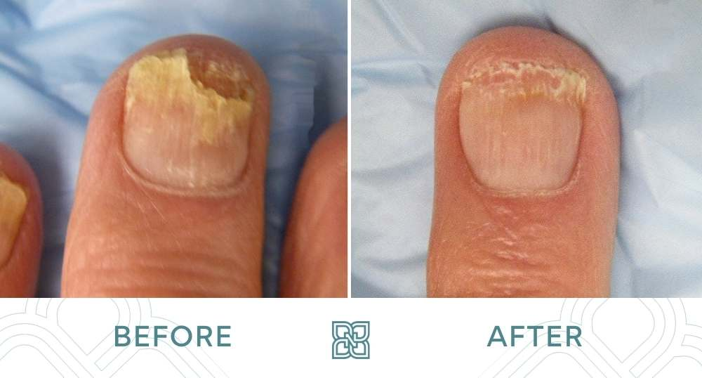 nail fungus treatment before and after