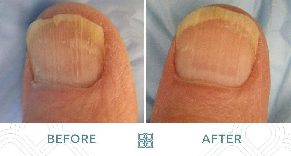 nail fungus treatment before and after edmonton
