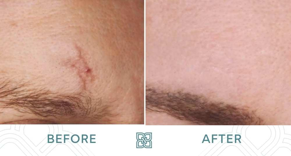 scar removal before and after forehead