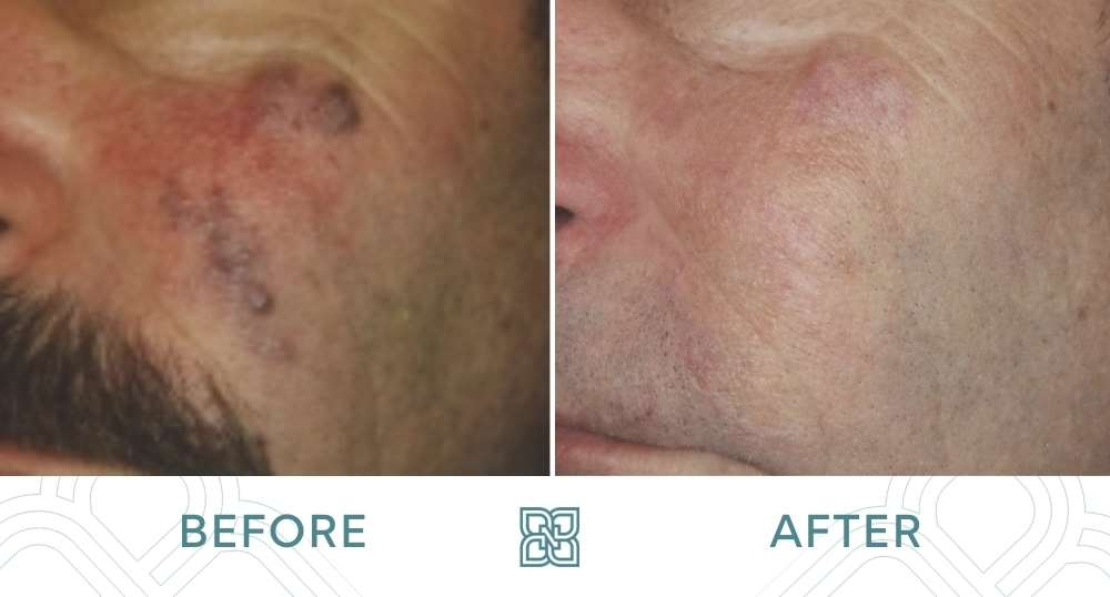 vascular hemangioma before and after photo