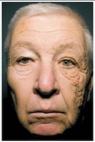 sun damage causing aged, wrnkled skin