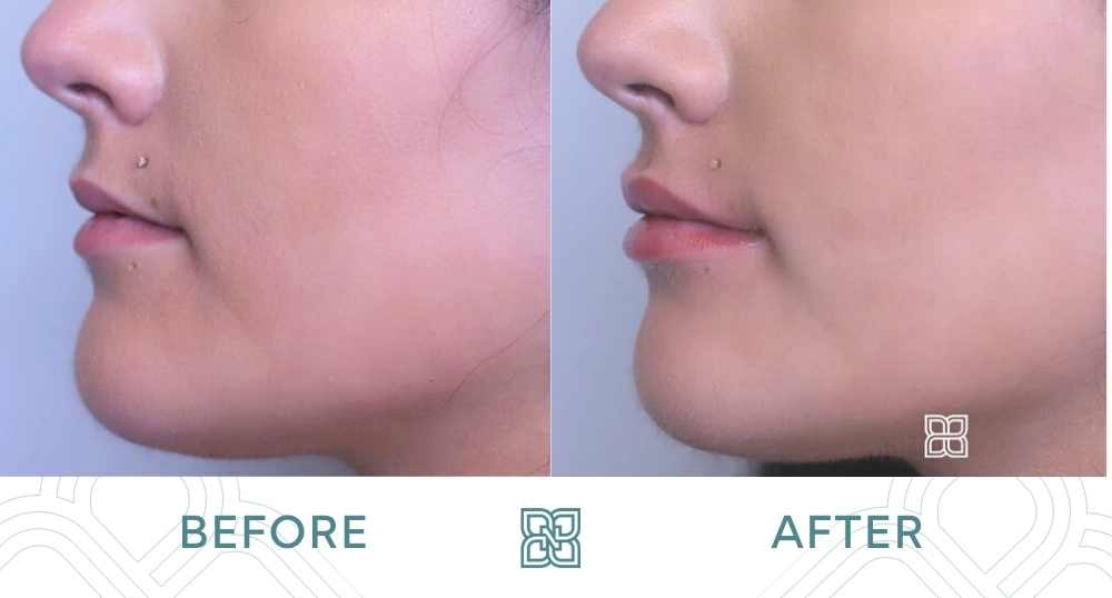 before and after lip filler edmonton