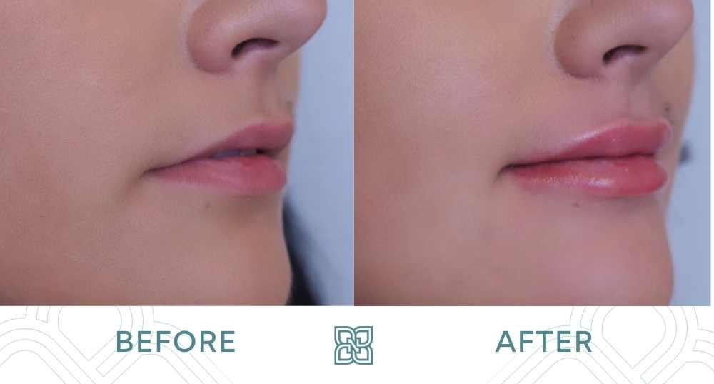 before and after lip filler edmonton right side one syringe of Juvederm